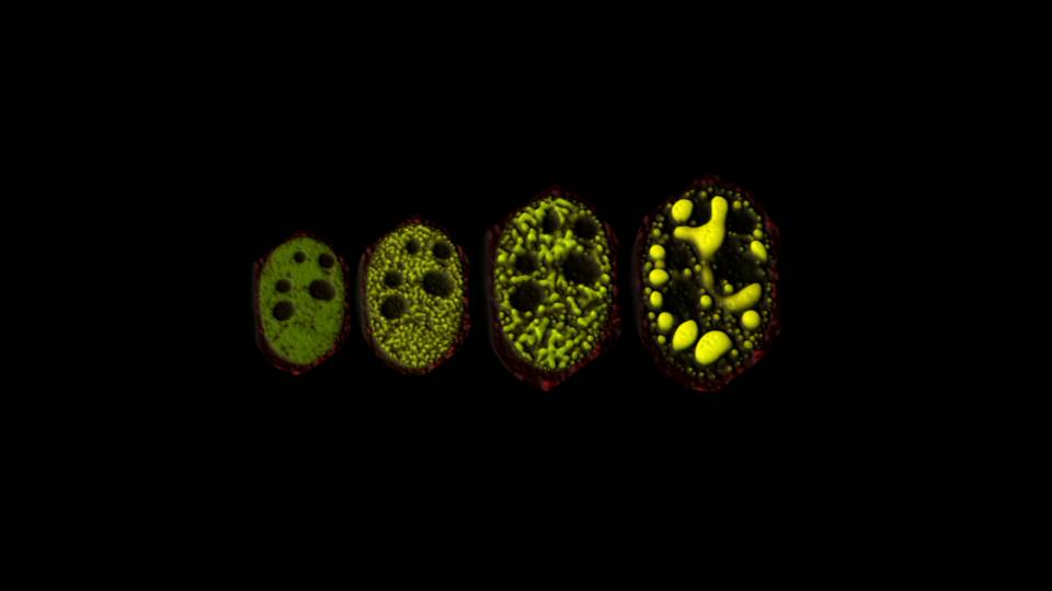 electron microscope images of membraneless organelles