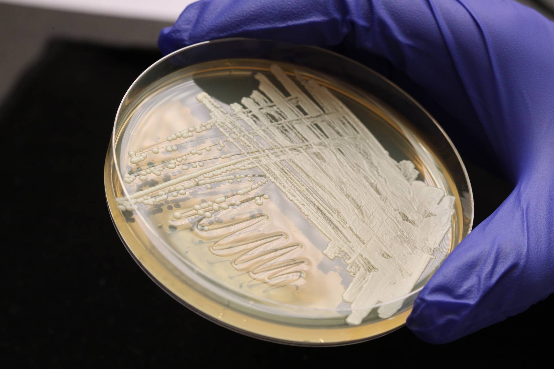 petri dish with yeast culture