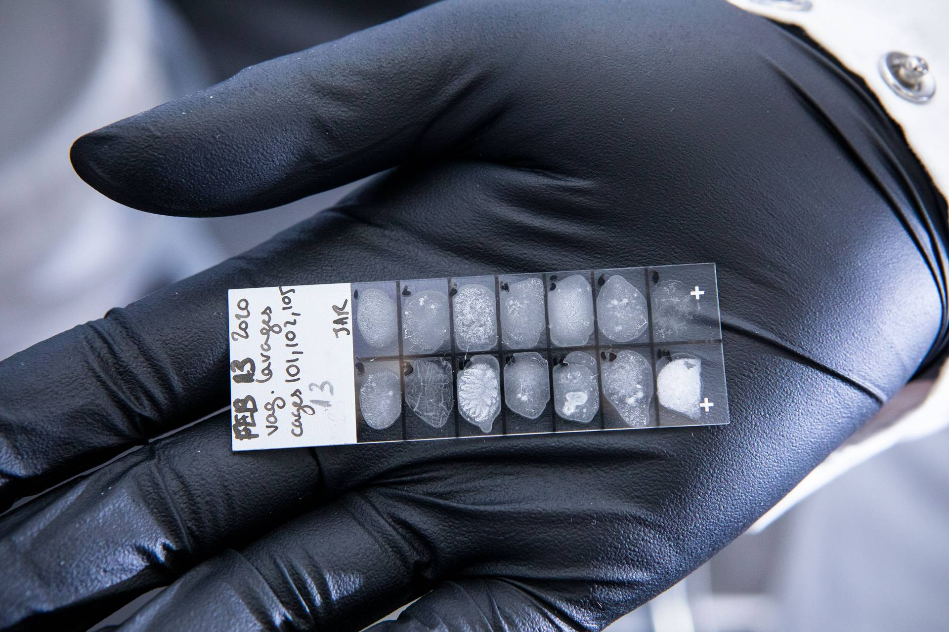 Lab samples in the palm of a nitrile gloved hand