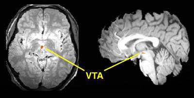 Risultati immagini per ventral tegmental area (VTA)