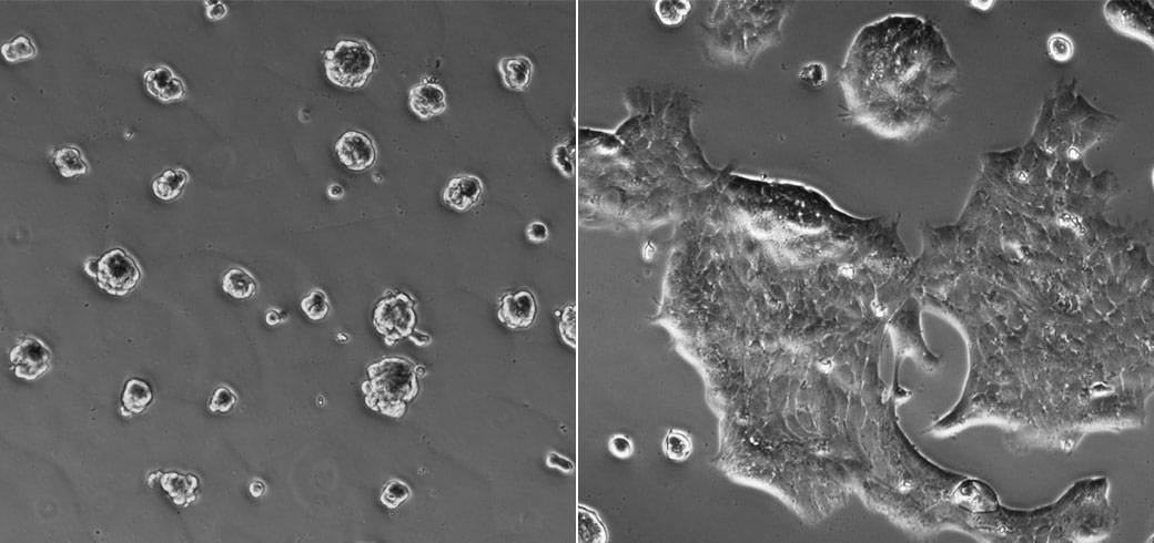 Images of cells that lead to breast-cancer progression in laboratory cultures